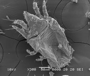 """ภาพไรฝุ่นที่ตายจากการใช้สเปรย์สมุนไพรกำจัดไรฝุ่น """"Mite Fear"""""""